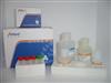 人泛素连接酶E3A(UBE3A)检测试剂盒